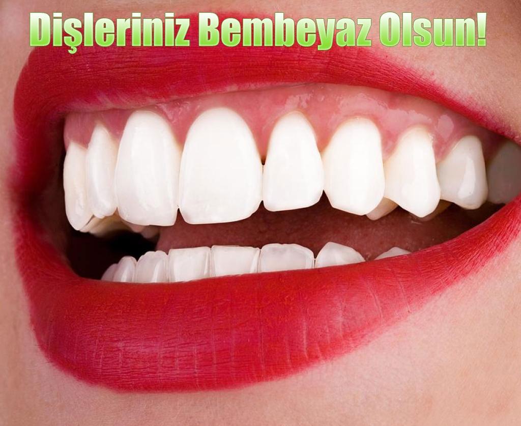 diş beyazlatma, evde diş beyazlatma